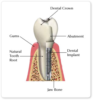 Dental Implants for Fun and Profit!